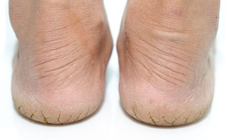 The importance of skincare for your feet – yes men, you too!