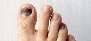 blackened toenail