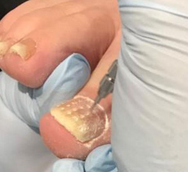 nail fenestration